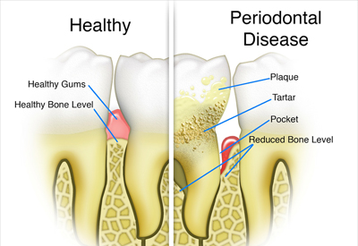 Gum Disease and Tooth and Bone Loss Vienna, VA